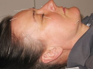 akupunktiohoito